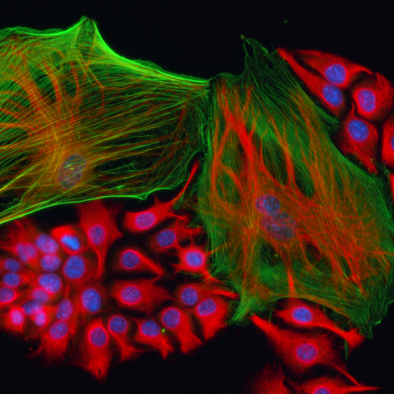 Cancer Deconstructed: Investigating the Role of Non-Cancerous Cells in a Lung Tumor